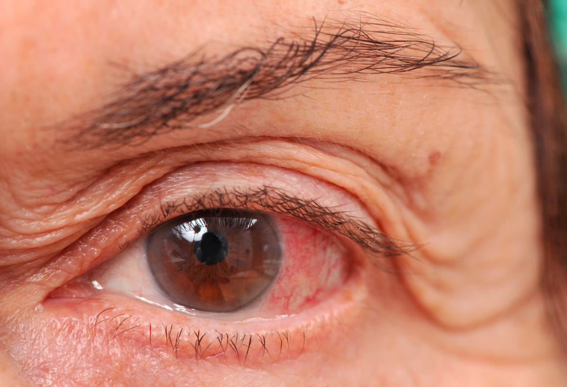 What is glaucoma? 10